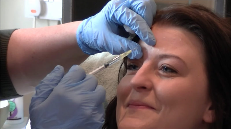 Botox injections chesterfield newark nottingham