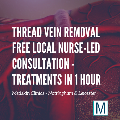 Thread Vein Removal Derby Nottingham Leicester