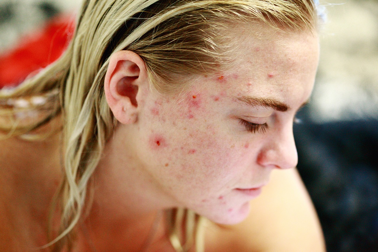 Microneedling for Acne Scars is your Solution – NOT Make-Up