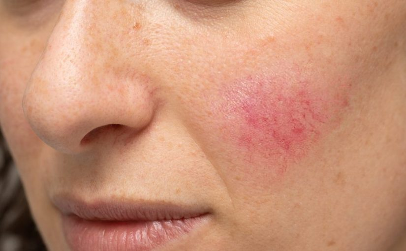 3 non-aesthetic reasons for treating your rosacea 7