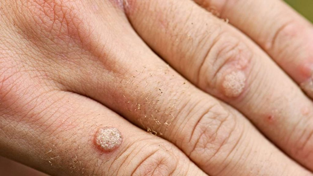 A wart can affect your professional life - so have yours removed! 4