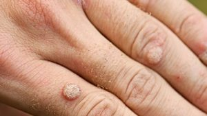A wart can affect your professional life - so have yours removed! 1