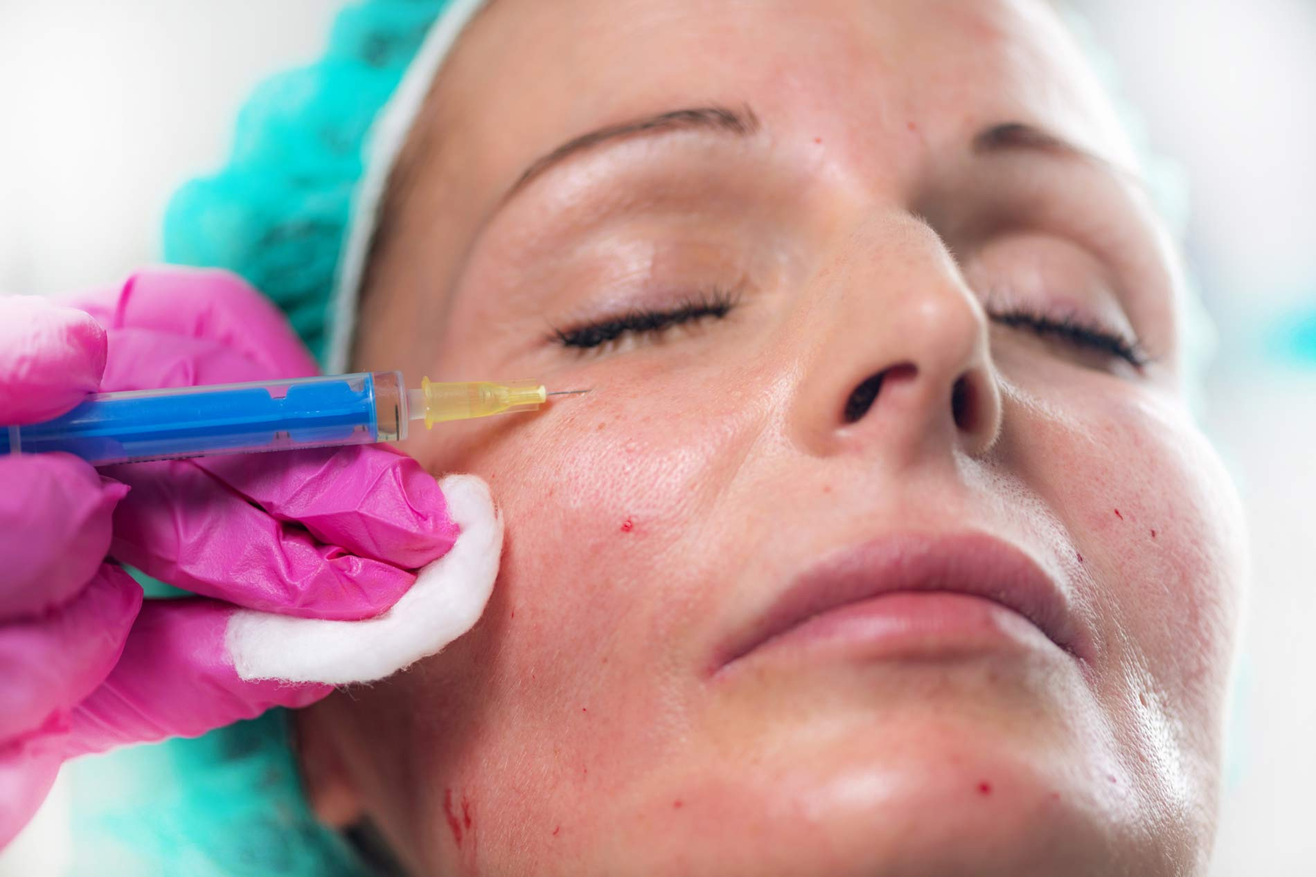 The anti-ageing superpowers offered by anti-wrinkle injections