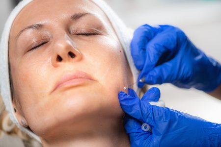 Botox Nottingham Newark Beeston Chesterfield Aesthetic Beauty Treatments