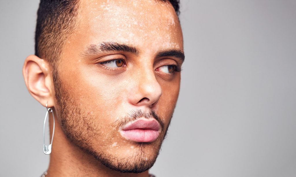 What causes pigmentation? - MedSkin Clinic