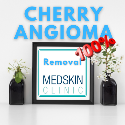 Cherry Angioma Home Remedy Removal Get Rid Treatment Cryotherapy Local Private Clinics Nurse Nottingham Beeston West Bridgford Derby Sheffield Chesterfield Lincoln Newark Leicester